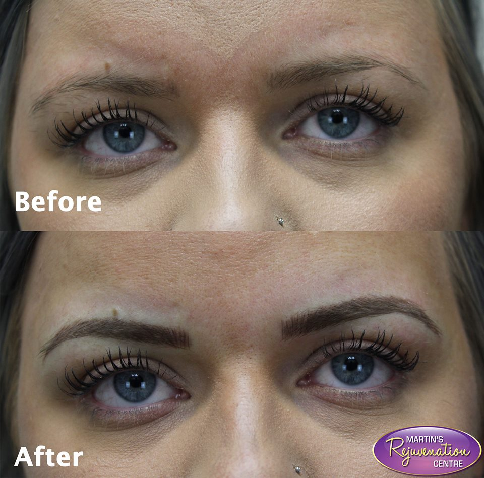 Botox Barrie Martins Rejuvenation Centre In Barrie Ontario