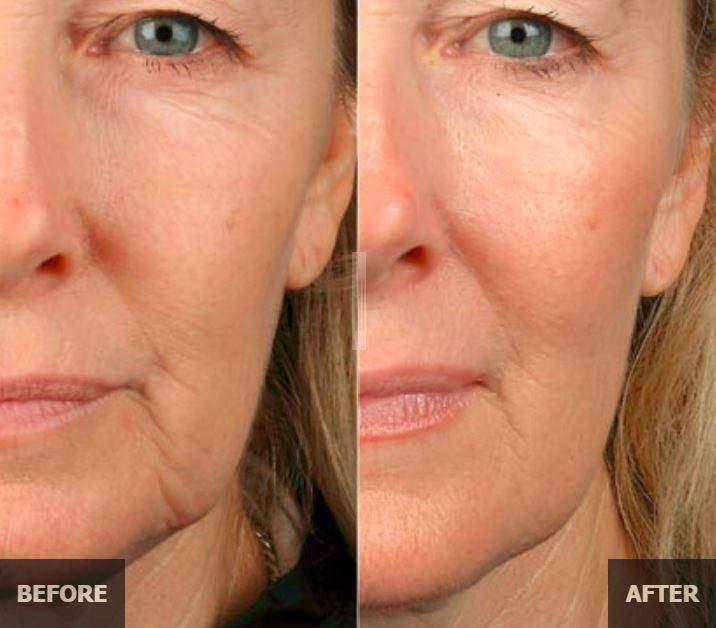 Botox Barrie - Martin's Rejuvenation Centre :: Thermage