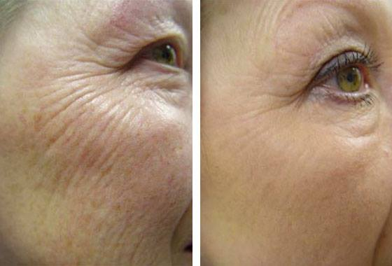 Botox Barrie - Martin's Rejuvenation Centre :: Smooth Eye