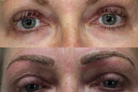 microblading1.png